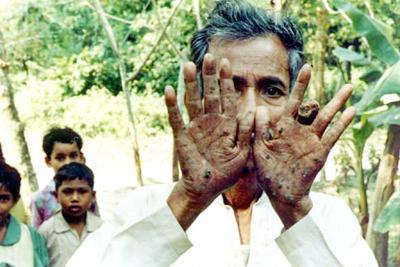 Отравление мышьяком в Бангладеш после попадания его соединений в воду.